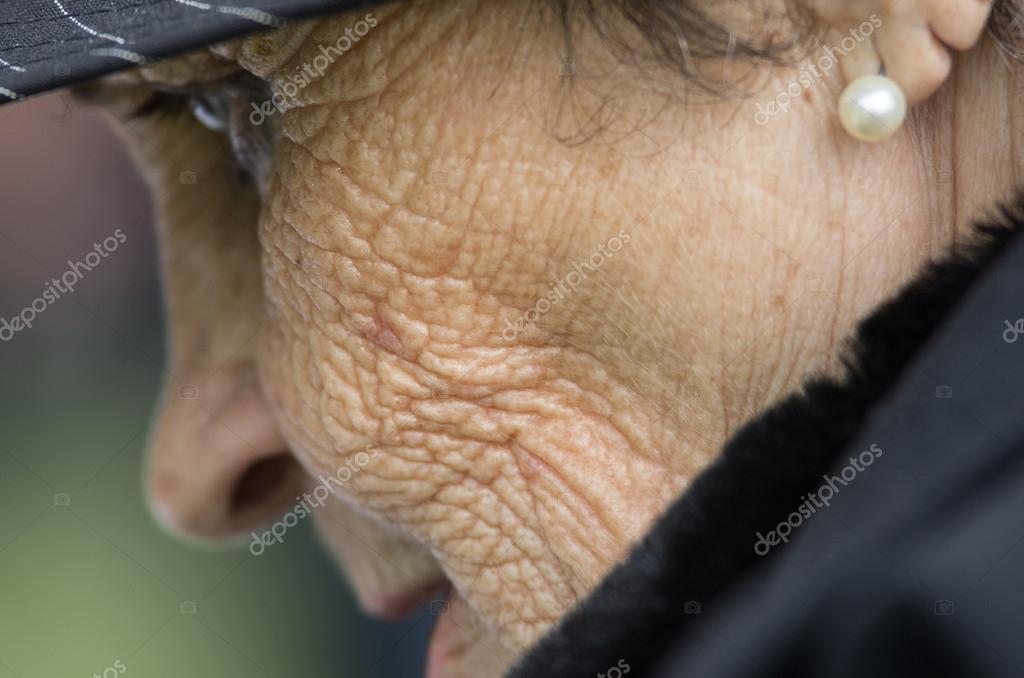 hpv anogenitális fertőzés icd 10 gomba jamila konyha