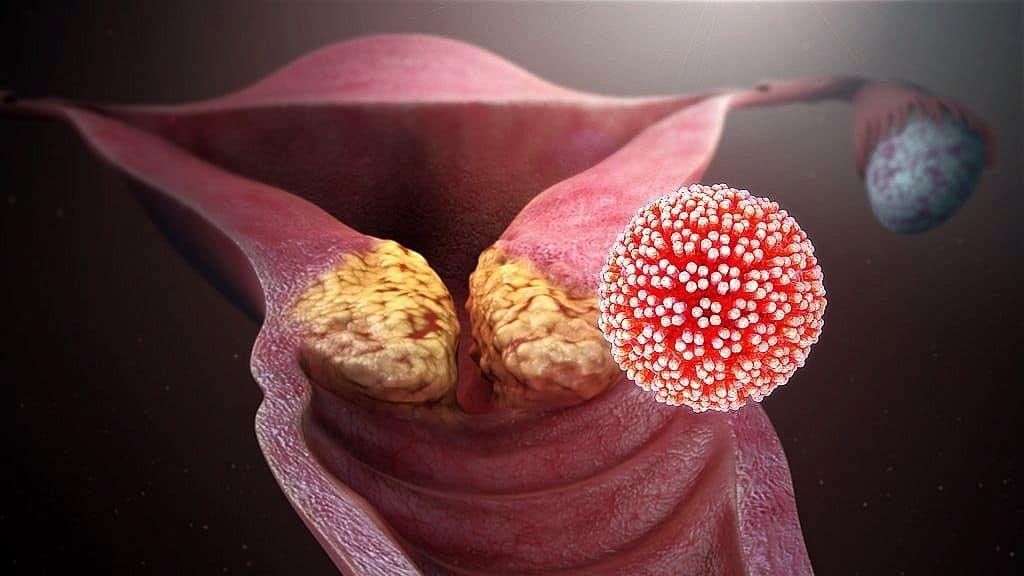 papilloma vírus az ember által fertőzött)