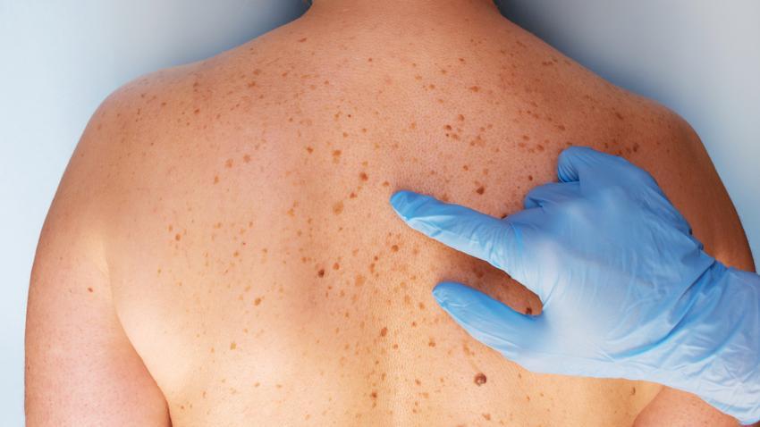 bőrrák férfiaknál