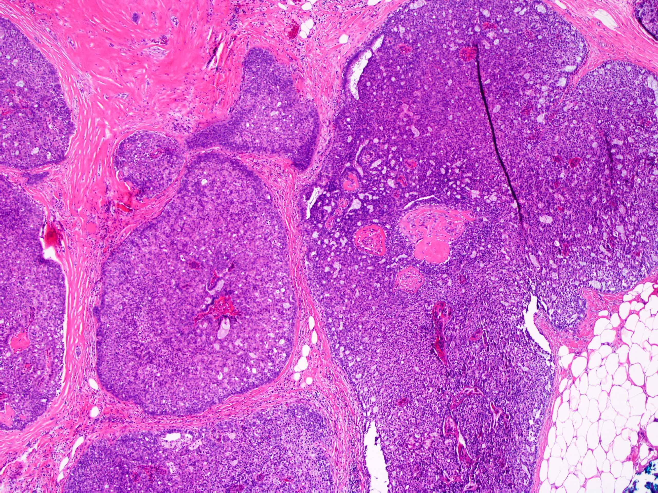 Az emlőmirigy intraduktális papilloma okai, az eltávolító művelet