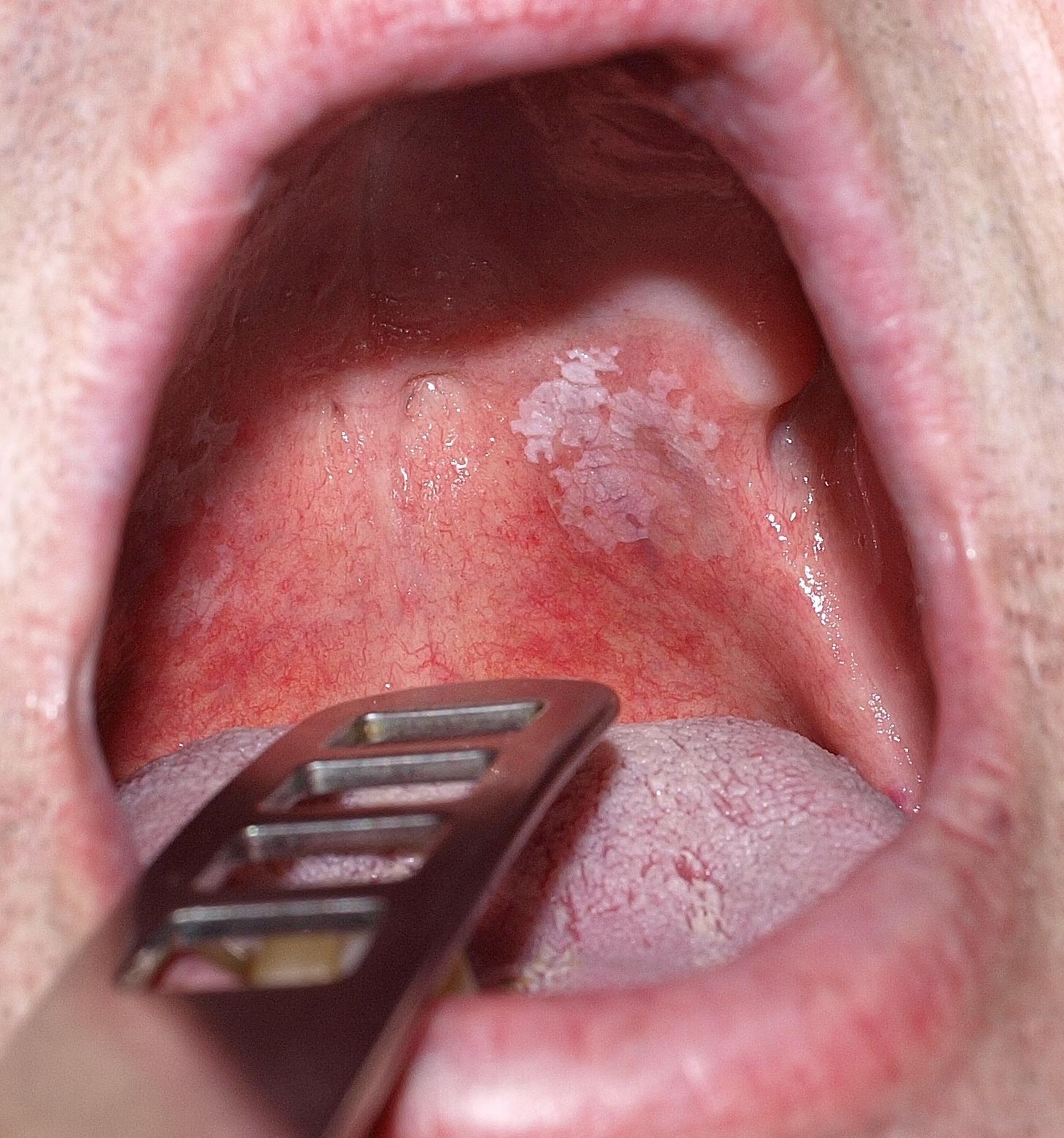 mint például a papilloma a szájban)