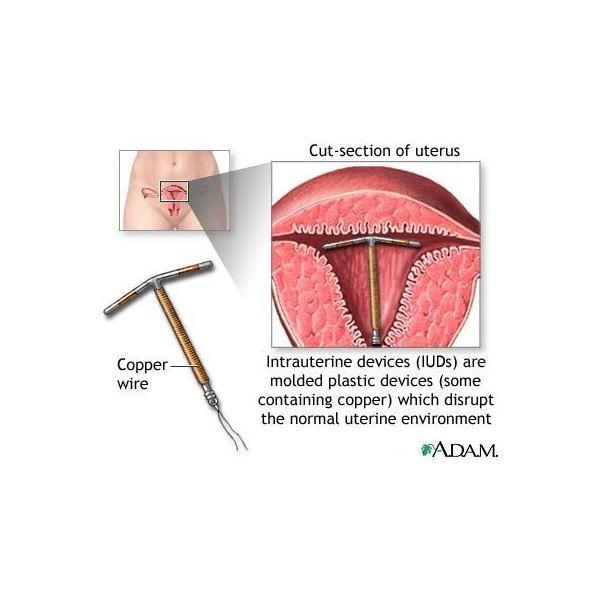 Nőgyógyászati kaparás - endosampler - Dr Zatik nőgyógyász