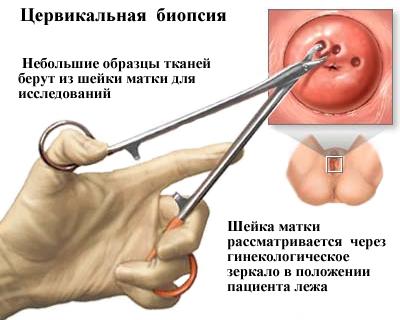 emberi papillomavírus kimutatásának kockázata