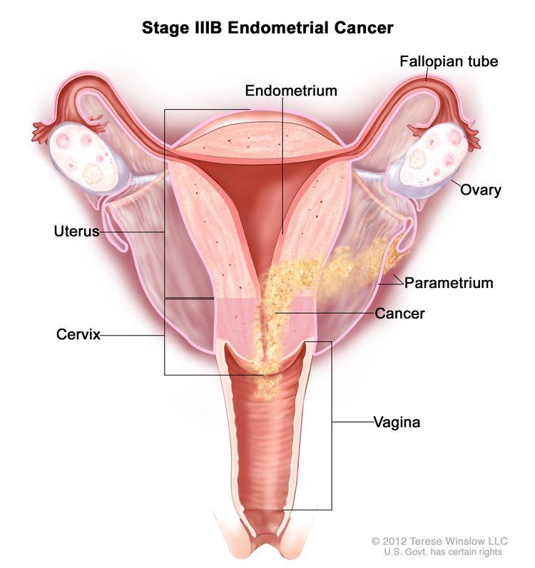 endometrium rák keytruda)