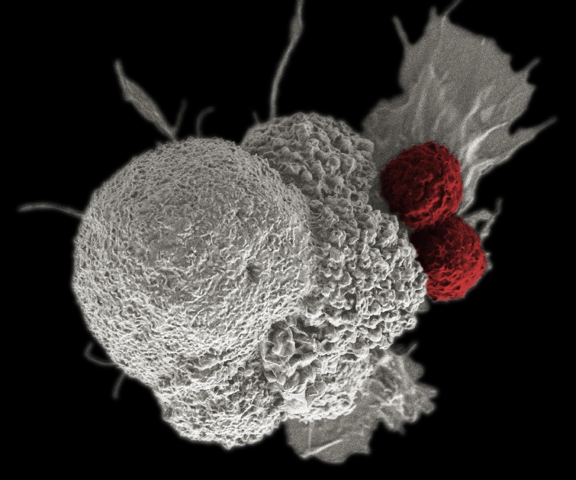 rák agresszív formája