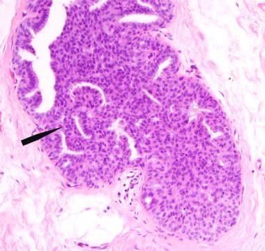Az emlőmirigy intraductalis papilloma