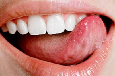 hpv vírus nincsenek tünetek