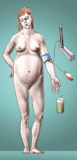 tezka vérszegénység v tehotenstvi)