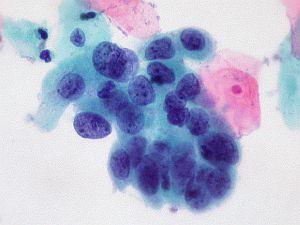 papilloma mikroszkóp alatt