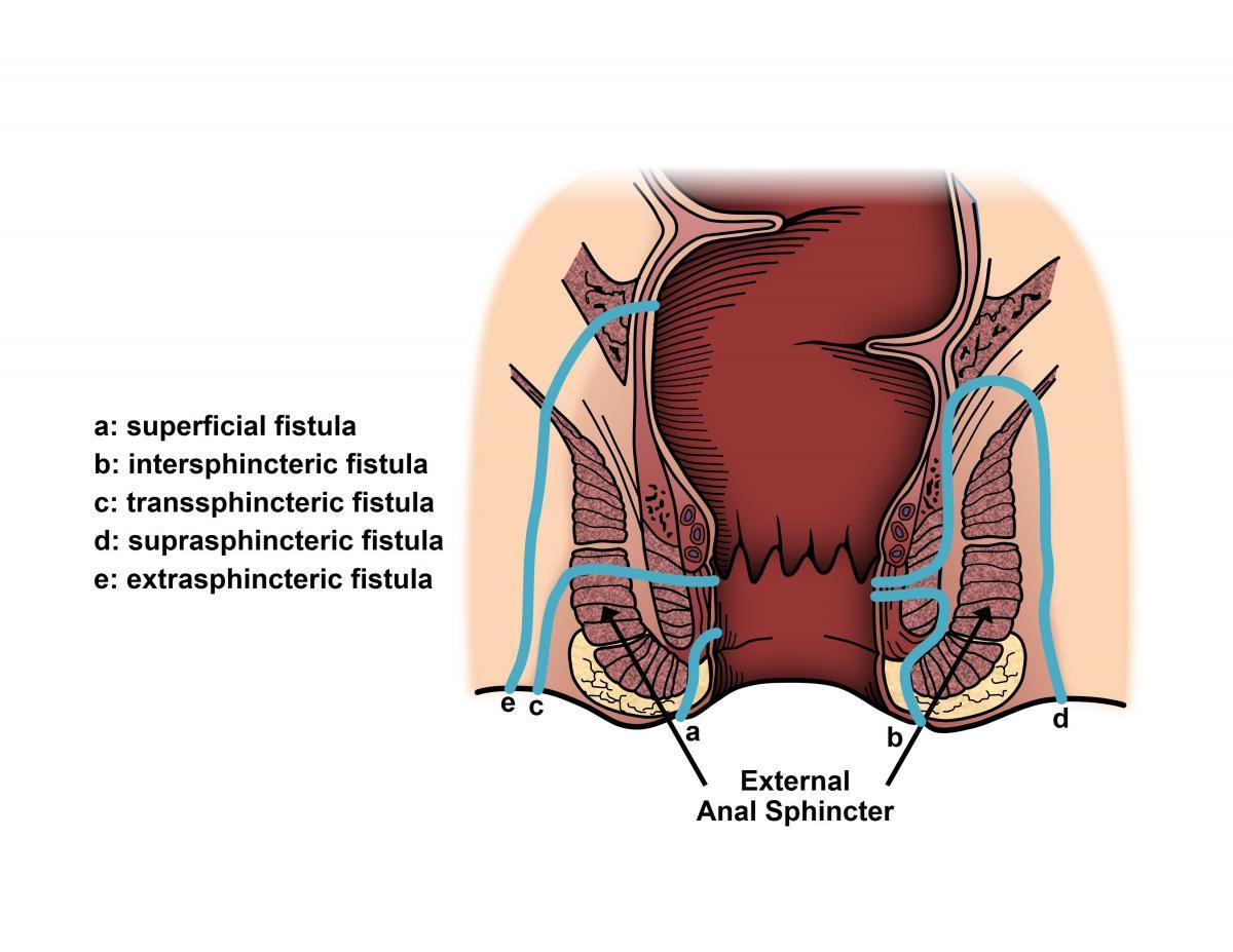 condyloma fistula