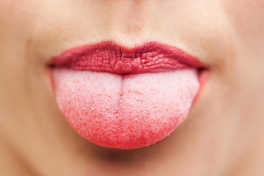papilloma vírus ajkak száj szemölcsök, amelyek megszabadultak hogyan
