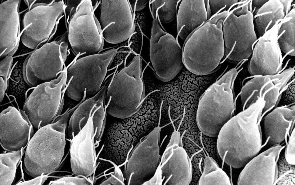 Giardia kod pasa simptomi. A végbél megtisztítása a parazitáktól - Giardia kod pasa lijecenje