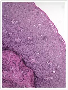 condyloma eltávolítva condylinnel fonálféreg-fertőzés