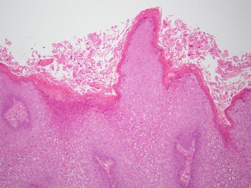 condyloma eltávolítva condylinnel hpv módon krebs