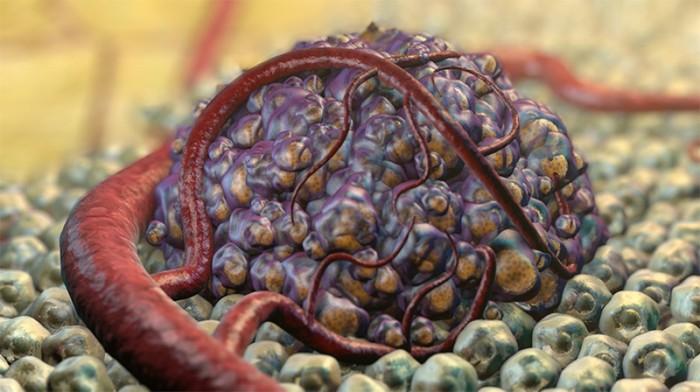 rák rosszindulatú daganata