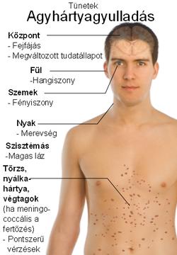 helmint fertőzés előfordulása)