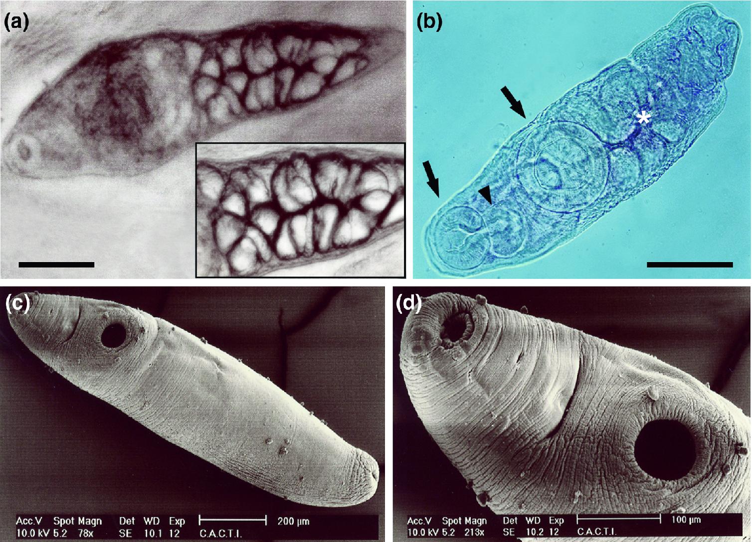 Protozoan és metazoan paraziták