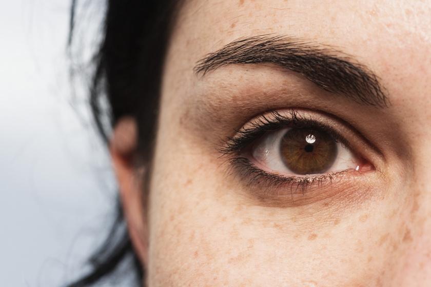 papillómák a szem alatt ami azt jelenti
