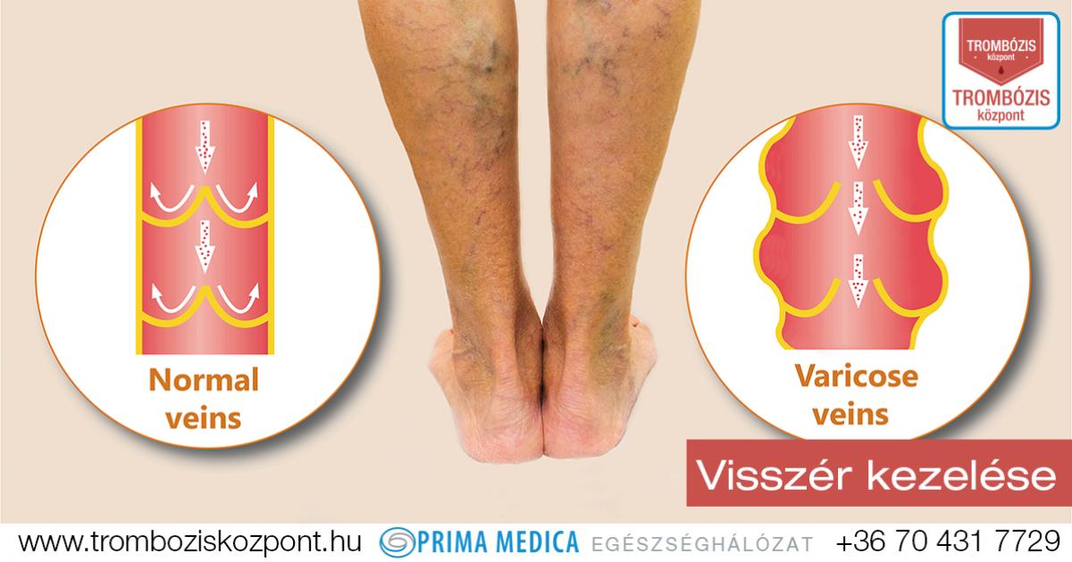 vérszegénység nehéz lábak)