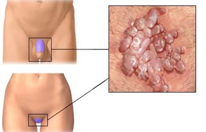 Condyloma a nyelv alatt - Alopecia