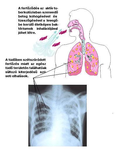 tüdő tünetei