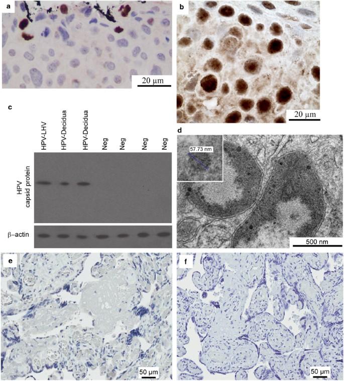 Hepatitis B vírus surface antigén (HBsAg) - SYNLAB