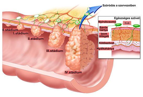 vastagbél fájdalom rák