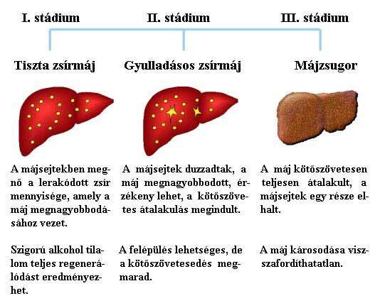 metasztatikus rák a máj prognózisában)