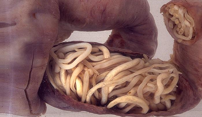 crevni paraziták kod dece slike)