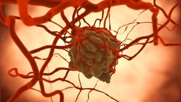 ismeretlen primer metasztatikus rák az ízeltlábúak által átvitt paraziták