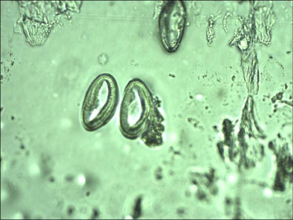 mebendazol parazita vélemények - doras.hu - Giardia kod pasa lecenje