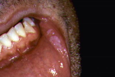 papilloma vírus adalah)
