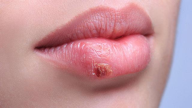 hpv herpesz fertőzés)