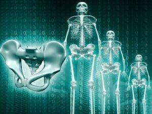Csontrák (csontdaganat, csontáttét)   doras.hu