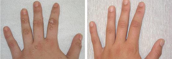 A papilloma kezelése a hangszálakon: hatékony növekedési módszerek - Bőrgyulladás October