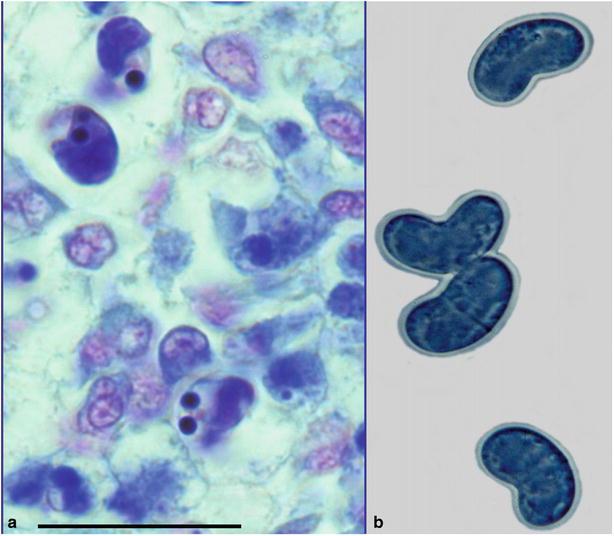 meghatározza a metazoa parazitáit