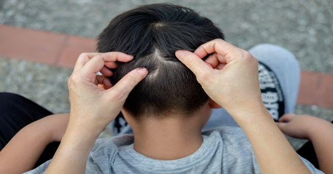 Típusú férgek gyermekeknél. Bélférgesség tünetei és kezelése a gyerekeknél