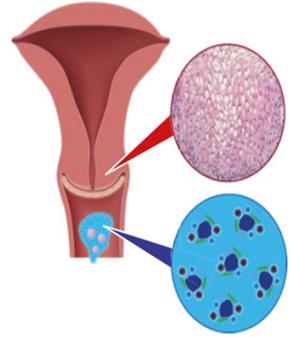 módszerek a nemi szemölcsök eltávolítására hpv impfung lichen sclerosus