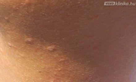 hpv nemi szemolcs kezelese a paraziták tisztítása a tüdőből