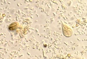 Giardia duodenalis cdc, Cdc giardia treatment -