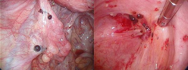 a végbélnyílás condyloma zwanger hasmenés