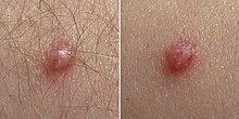 gége papillomatosis hpv 6 nemi szemölcsök rádióhullámos kezelése