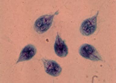 cöliákia giardiasis