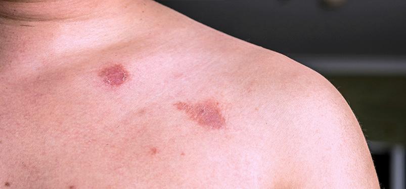 hpv vírus és lupus)