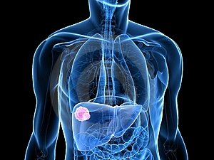 szarkóma rák rosszindulatú daganata