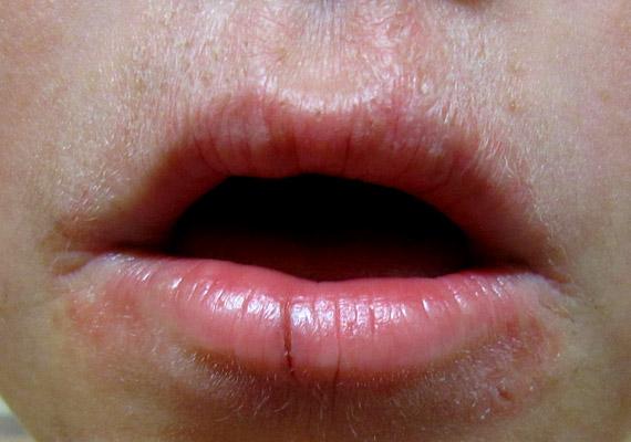 száj dermatitis)