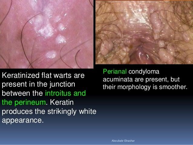papilloma condyloma kezelésének módszerei)