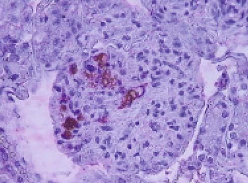 Rickettsia helminthoeca, Milyen gyógyszerek megölik a parazitákat