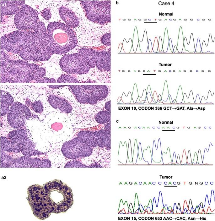 gége papillomatosis patogenezise