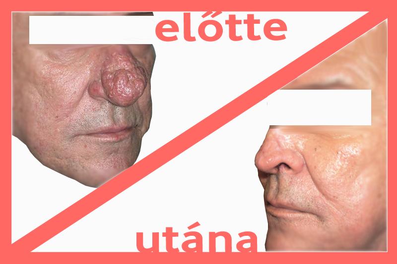 szemölcsök az orr kezelésében